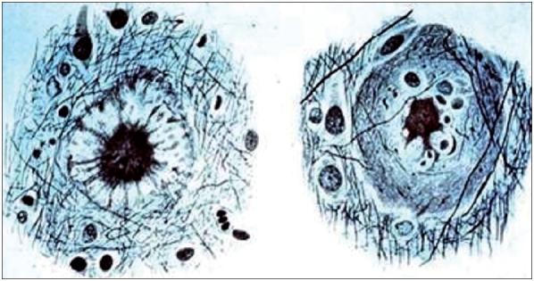 Cơ chế tác dụng của Meriva® đối với bệnh Alzheimer