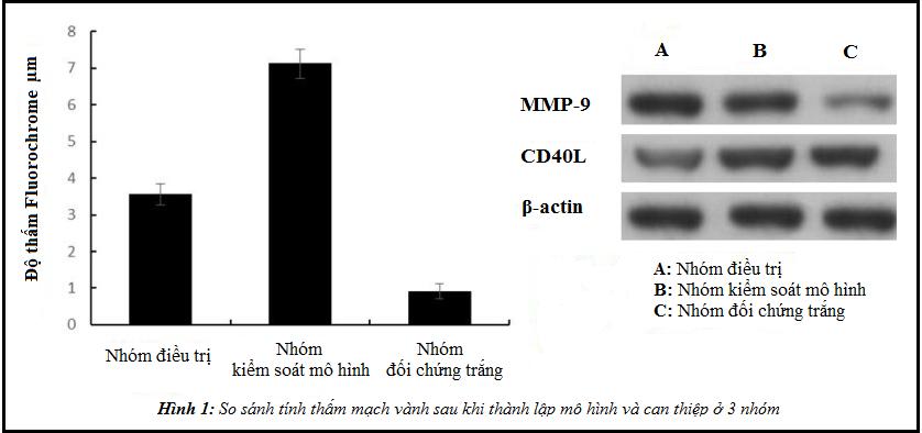 Meriva® và bệnh mạch vành