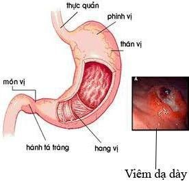 Meriva với tác dụng chống viêm -1