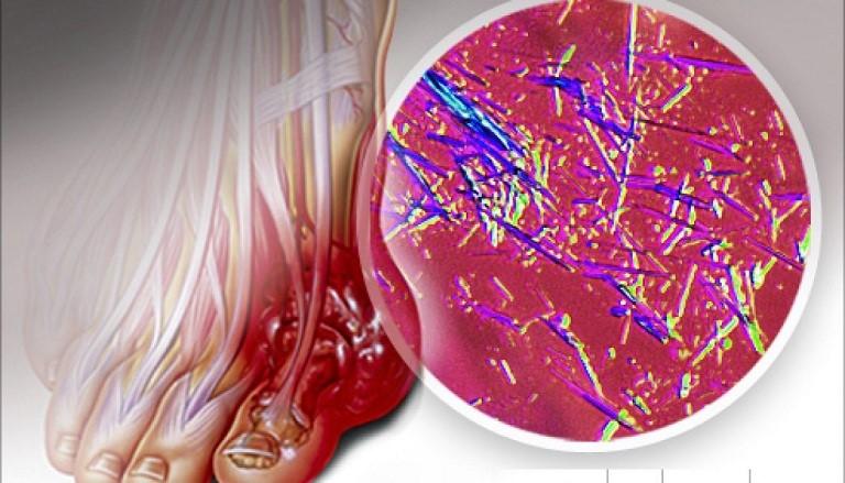 Ayuric giúp giảm Acid uric máu
