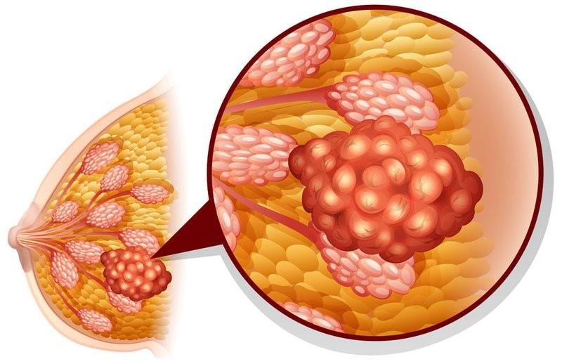 Boswellia - Để ung thư vú không còn là nỗi lo 2