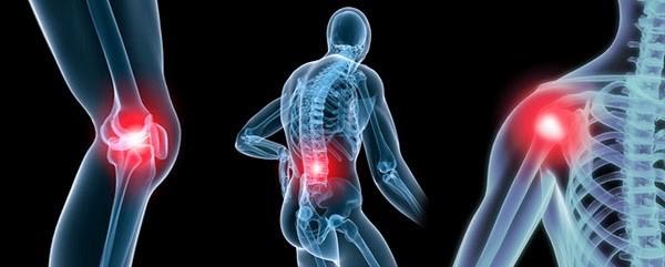 Boswellia – Cải thiện bệnh viêm khớp dạng thấp và viêm xương khớp
