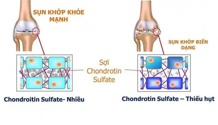 nguyên liệu tpcn xương khớp, nguyên liệu chondroitin tpcn