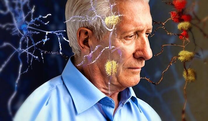 Cistanche tubulosa – thần dược cho não bộ 2