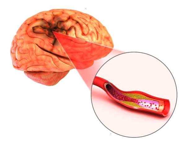 Cistanche tubulosa – thần dược cho não bộ 3