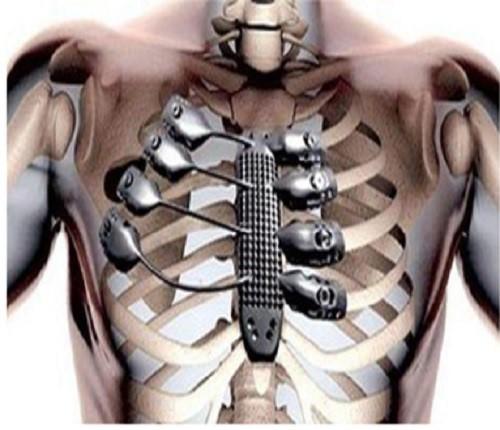 curcumin kết hợp công nghệ in 3d ngăn ngừa phát triển ung thư xương