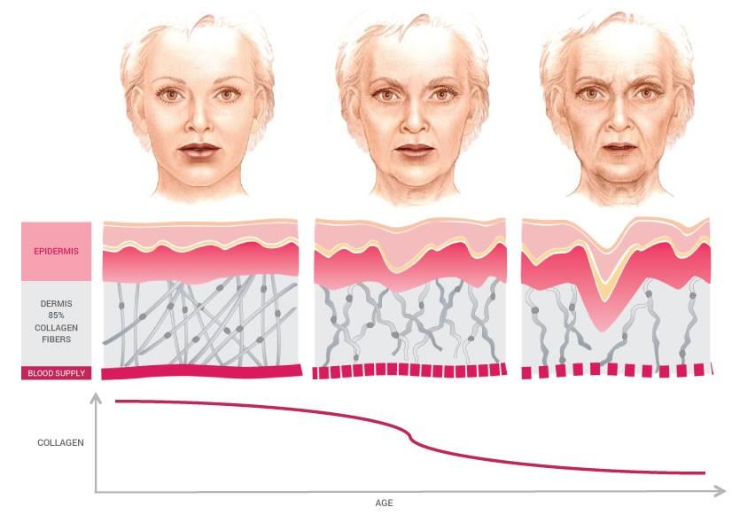 Collagen trong cơ thể giảm đi so với sự tăng độ tuổi